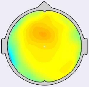 Diagramma EEG durante una sessione di meditazione